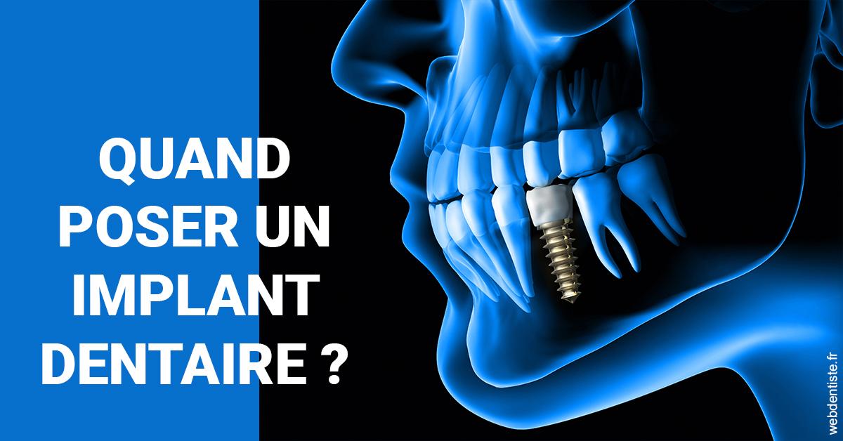 https://www.cabinet-dentaire-jardin-des-plantes.fr/Les implants 1